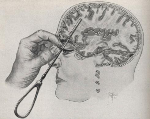 Bizarne metode liječenja iz prošlosti
